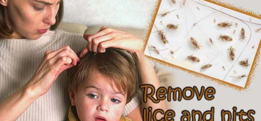 Remove lice and nits