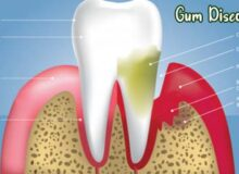 everything-to-know-about-gum-disease